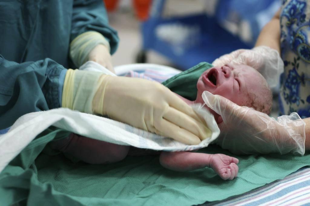 Симптомы и лечение асфиксии новорожденных