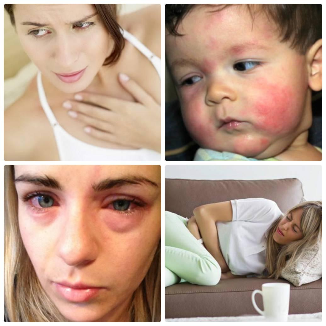 Как выявить аллерген • аллергия и аллергические реакции