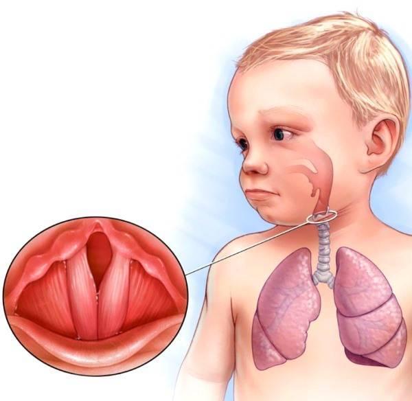 Профилактика лечения горла у ребенка - лечим сами
