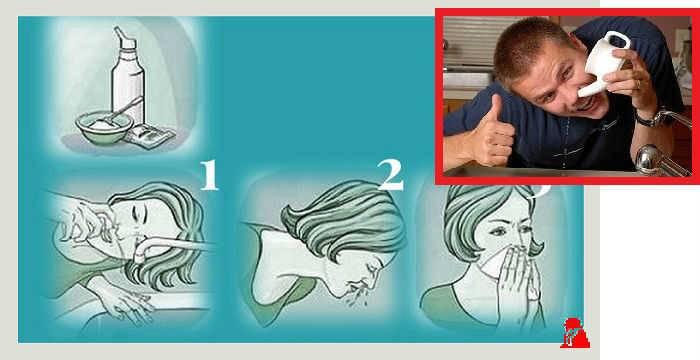 Чем промывать нос при насморке детям и взрослым