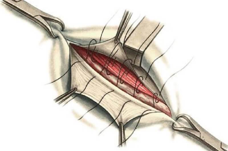 Операция по удалению паховой грыжи: показания, методы, реабилитация