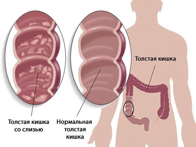 Слизь из заднего прохода (из прямой кишки): причины и лечение