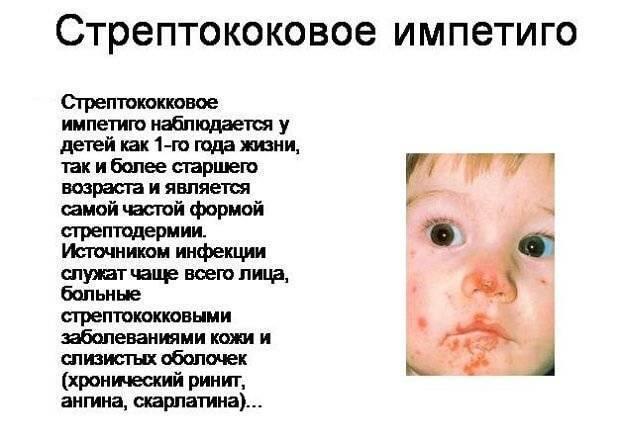 Импетиго у детей: причины, симптомы разных форм, лечение