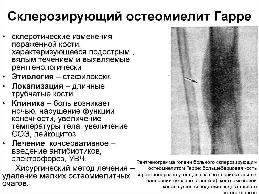 Симптомы и лечение остеомиелита у детей