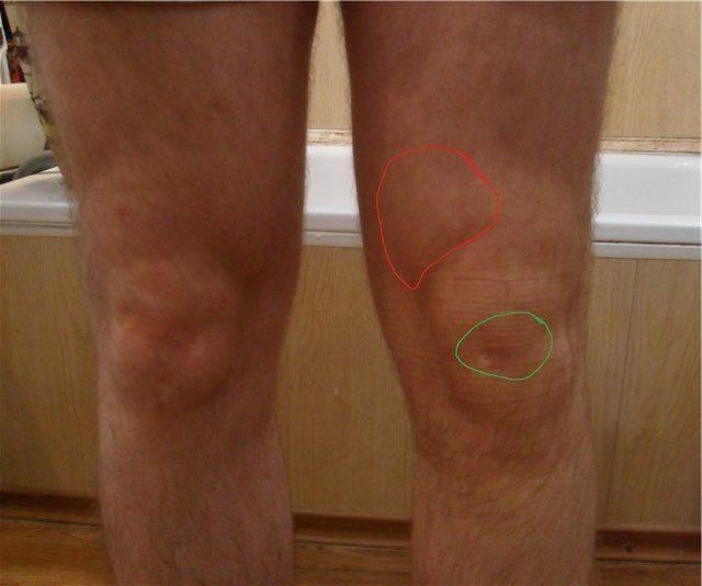 По каким причинам у ребенка болят колени, диагностика и методы лечения патологий - твой суставчик