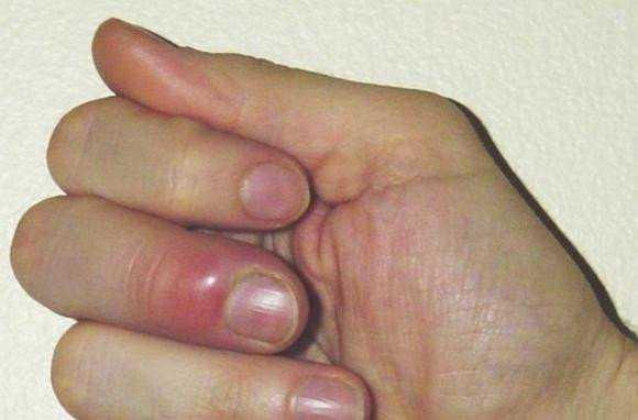 Нарыв возле ногтя у грудничка: как лечить воспаление ногтя? | красивые ногти - дополнение твоего образа