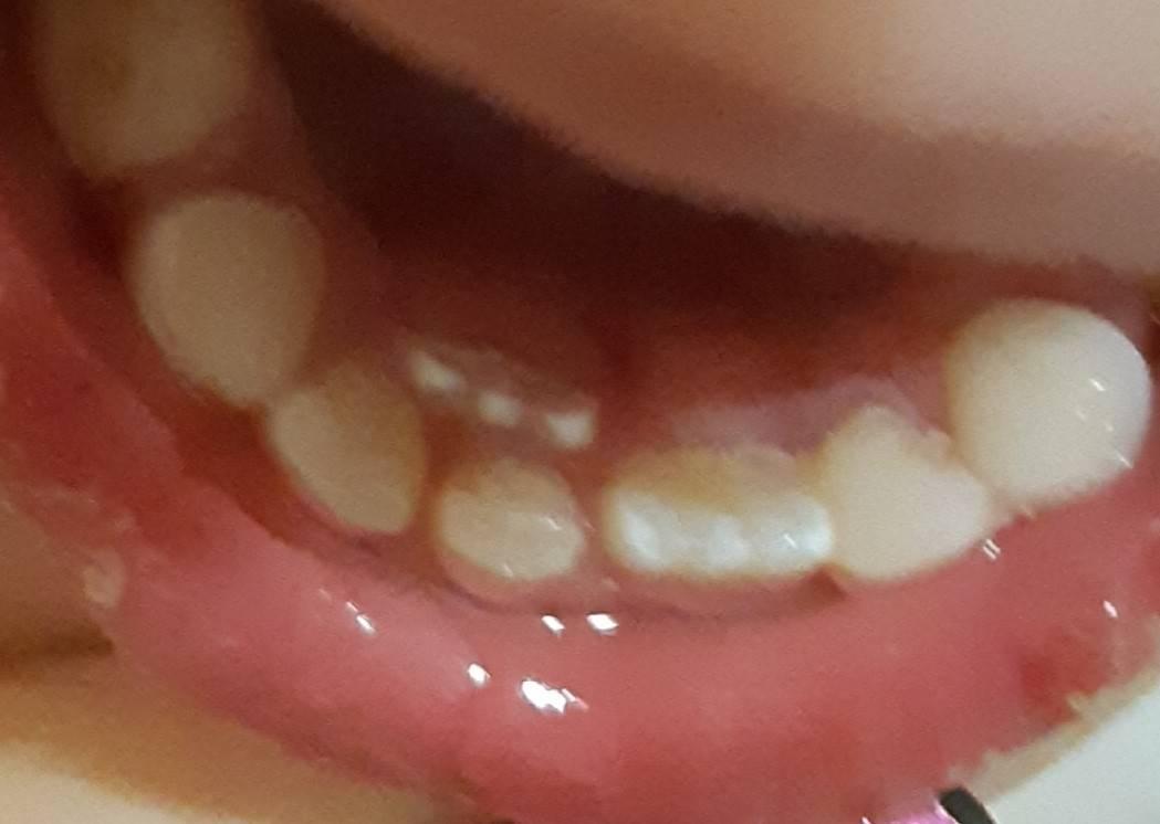 Криво режутся зубки: фото, причины, как исправить?