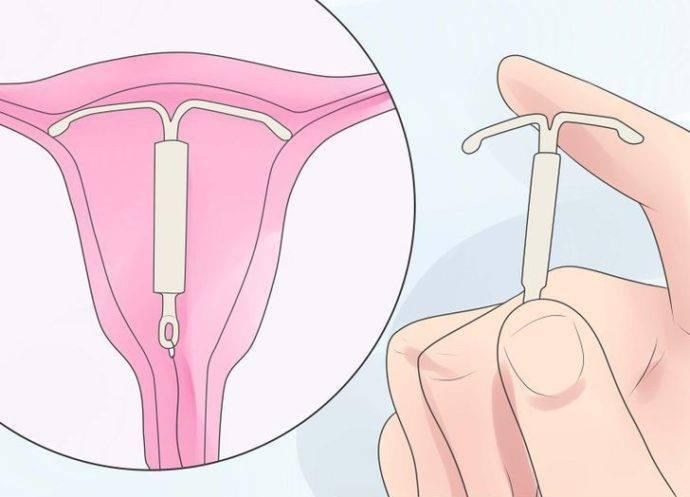 Как убирают спираль из матки