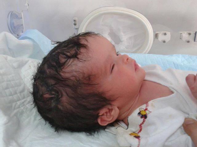 Формирование и лечение гидроцефалии у ребенка