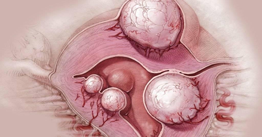 Можно ли забеременеть с кистой яичника: какие шансы на зачатие с разными видами образований