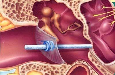 Шунтирование барабанной полости: реабилитация, симптомы и осложнения | food and health