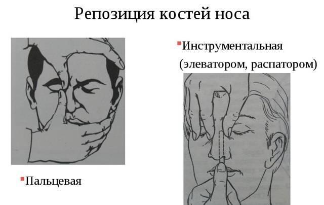 Перелом носа у ребенка симптомы - особенности лечения