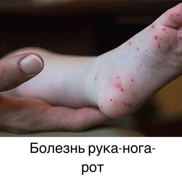 Энтеровирусный везикулярный стоматит синдром рука нога рот чем лечить