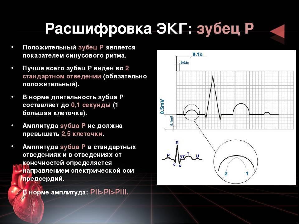 Расшифровка экг: наиболее важные показатели кардиограммы с примерами нарушений | университетская клиника