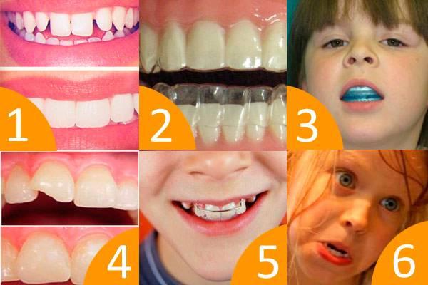 Что представляют собой пластины для выравнивания зубов?