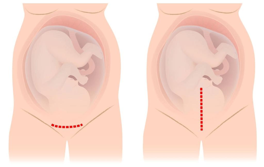Кесарево сечение при тазовом предлежании: когда делают, как проходит, какие плюсы и минусы операции?