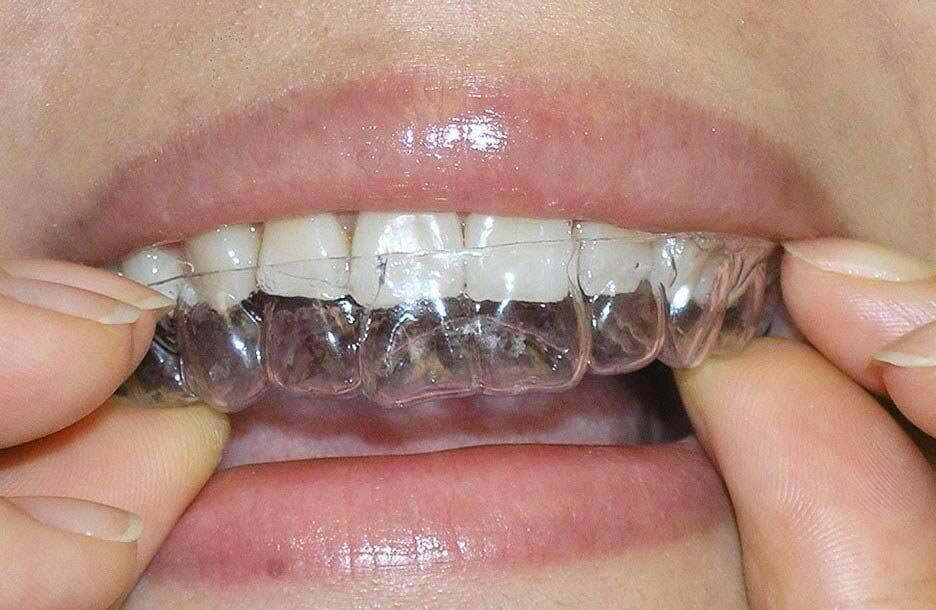 Пластины на зубы детям: фото до и после, когда и для чего применяются?