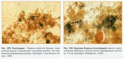 Узнаем что такое йодофильная флора в кале у вашего ребенка — от чего ее уровень может быть повышен?