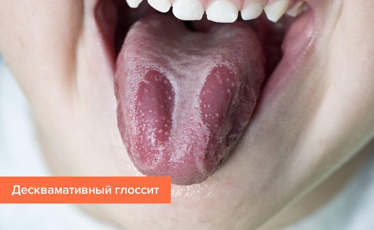 У ребёнка на языке пятна красные, белые: причины, диагностика, лечение патологии