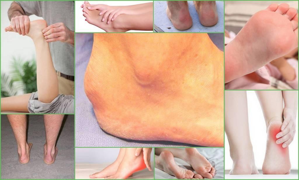 Болезнь шинца у детей: как лечить?