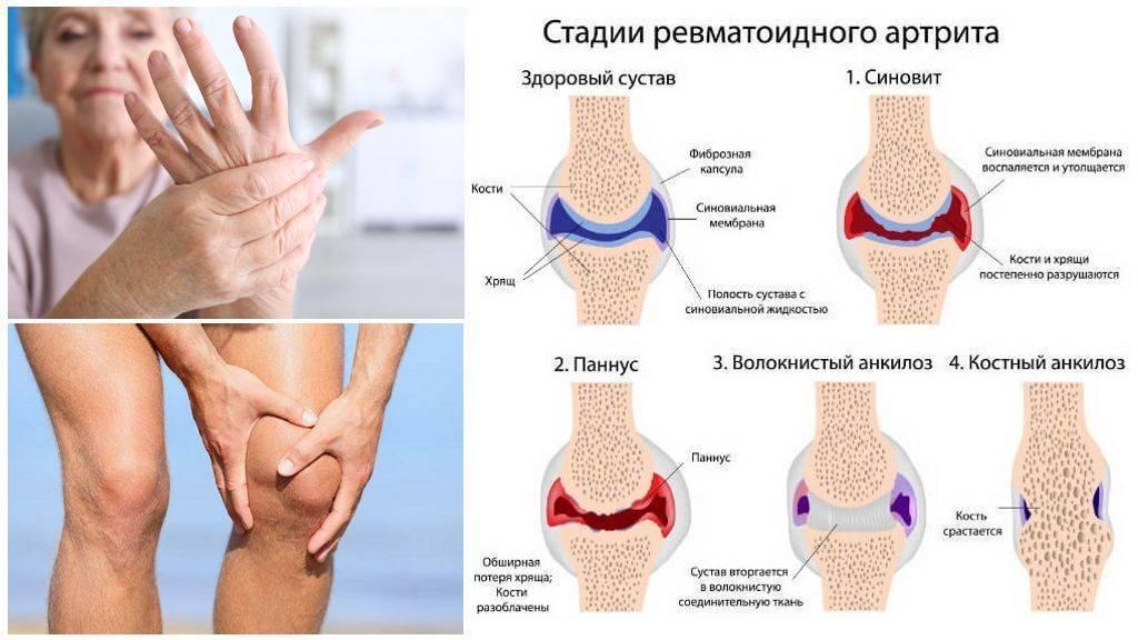 Артрит коленного сустава у детей: симптомы и способы лечения