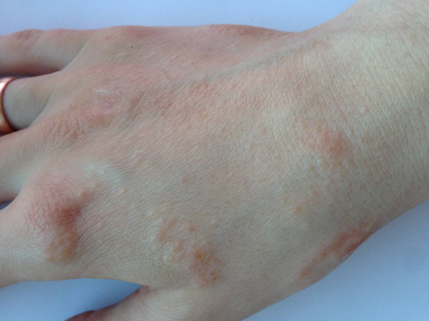 Шелушатся пятки у ребенка: причины шелушения и как избавиться