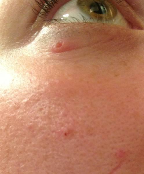 Сыпь вокруг глаз у подростка
