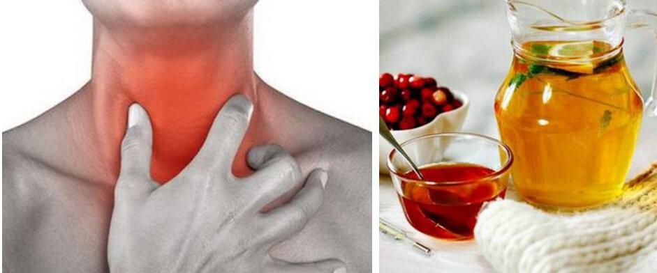 Золотые рецепты: лечение горла народными средствами