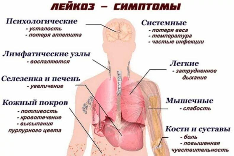 Лейкоз: симптомы у детей, признаки, как проявляется, что это такое