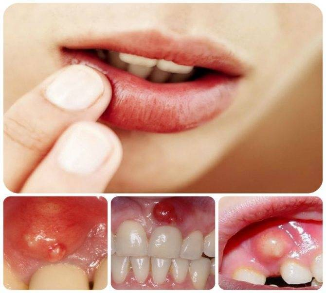 Может ли флюс давать температуру у ребенка | здоровье зубов
