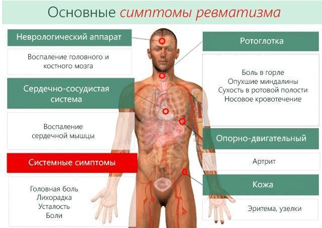 Ревматизм: профилактика, причины заболевания, симптомы и лечение