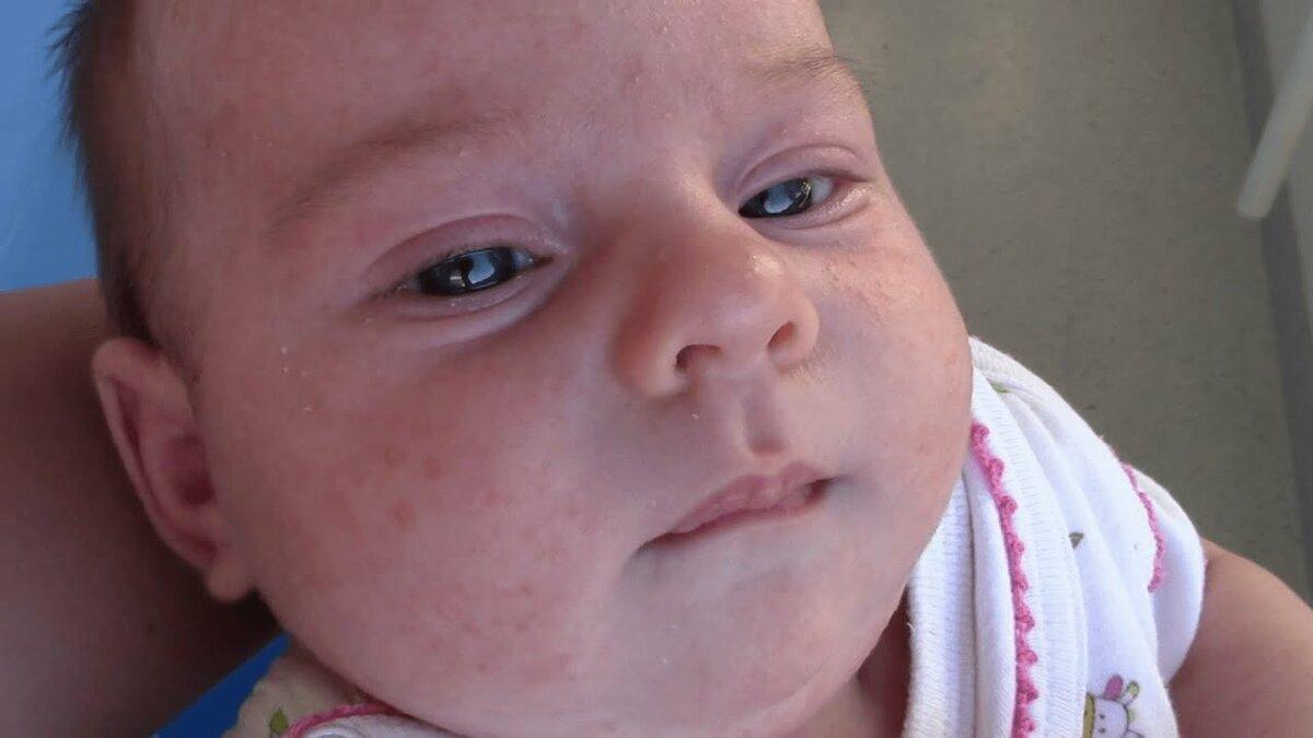 Как отличить аллергию от цветения у новорожденных – отличие симптомов