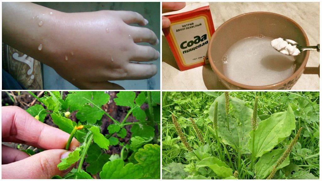 Народные средства от укусов комаров
