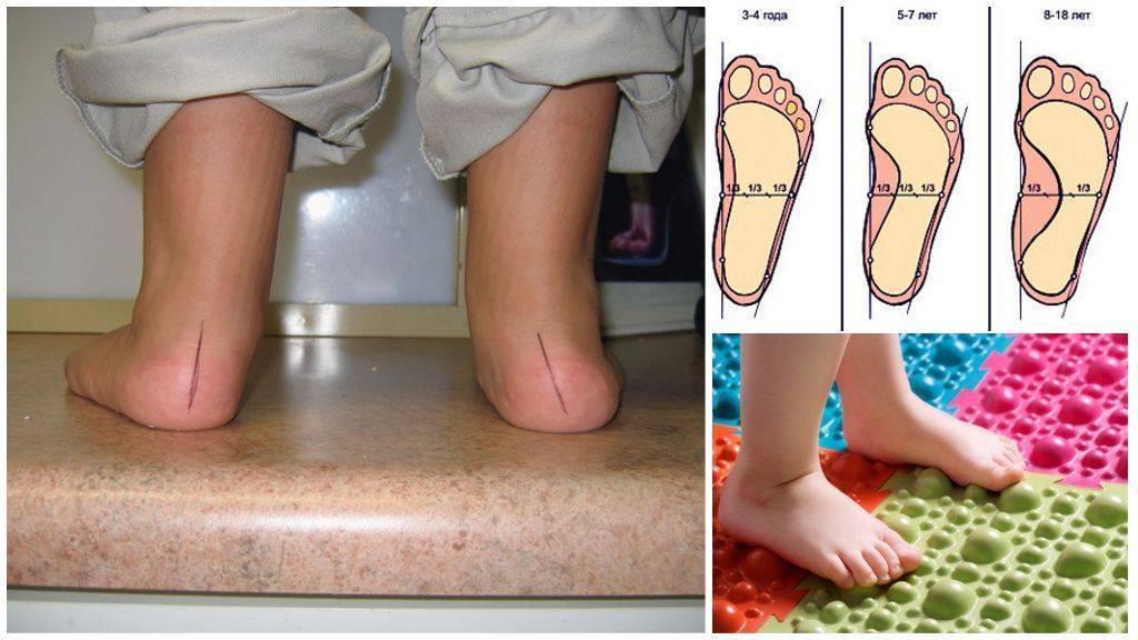 Почему ребенок ходит на цыпочках в 2-3 года (на носочках): Комаровский