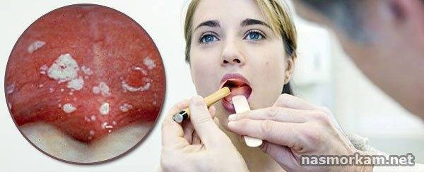 Стоматит на гланде: как лечить?