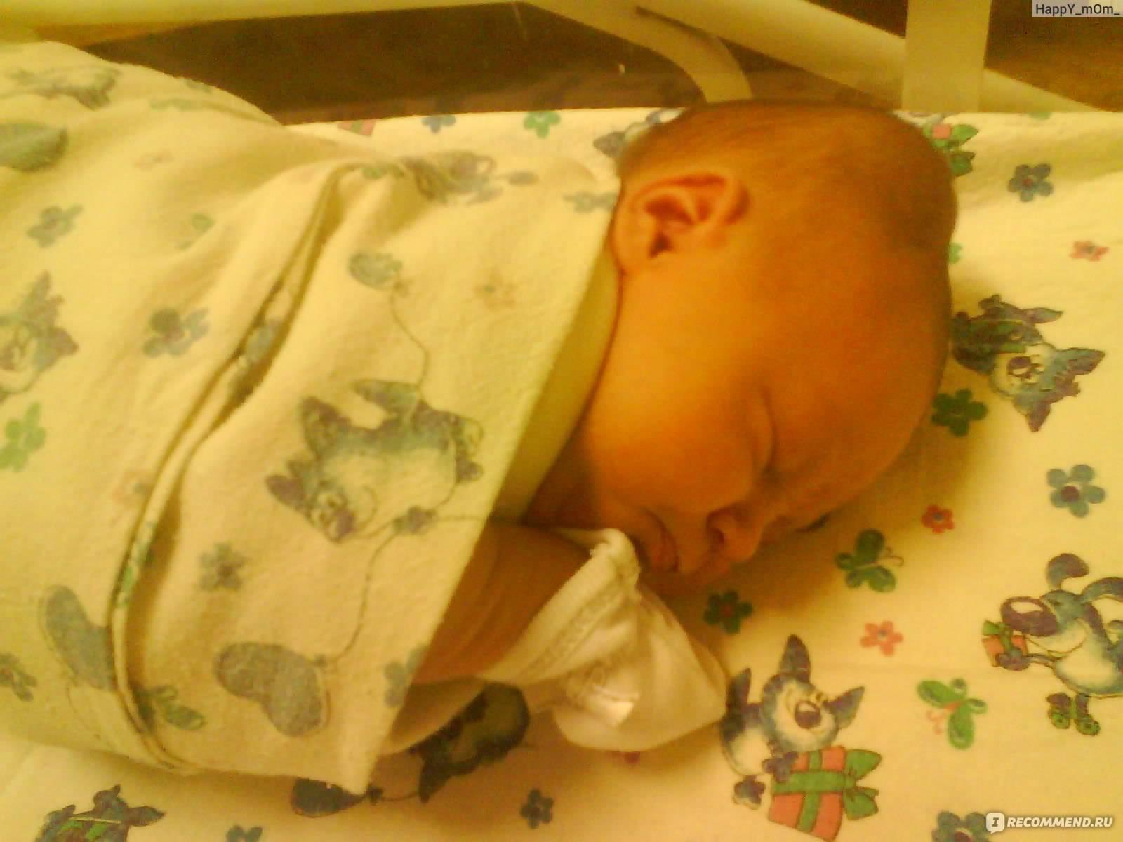 Гематома на голове у новорожденного после родов: когда проходит, последствия