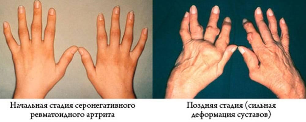 Ревматоидный артрит: причины, симптомы, классификация, диагностика, препараты, у детей, профилактика