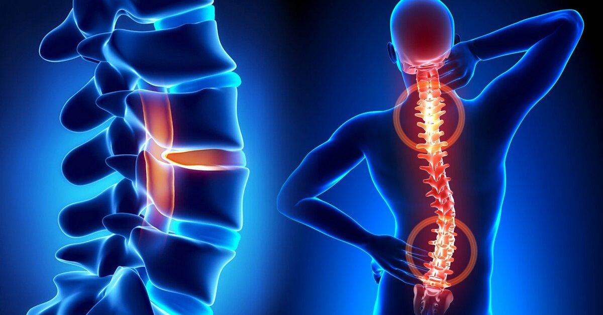 Кому и чем грозит остеохондроз поясничного отдела позвоночника?