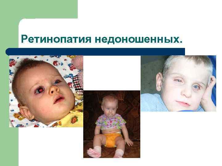 Ретинопатия недоношенных: что это такое, как лечить ретинопатию 1 степени у недоношенных детей, последствия | медицинский портал spacehealth