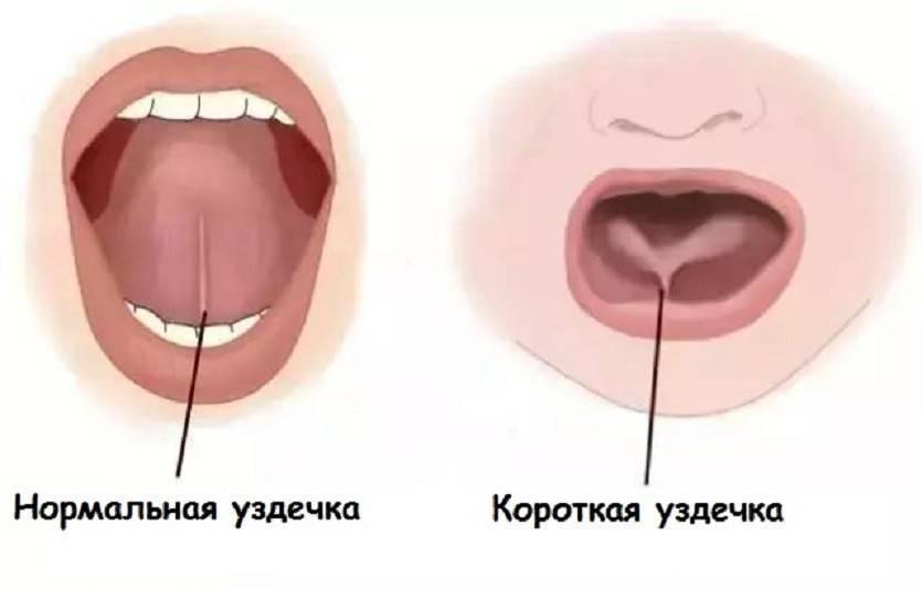 Почему у ребенка опухла губа и что делать?
