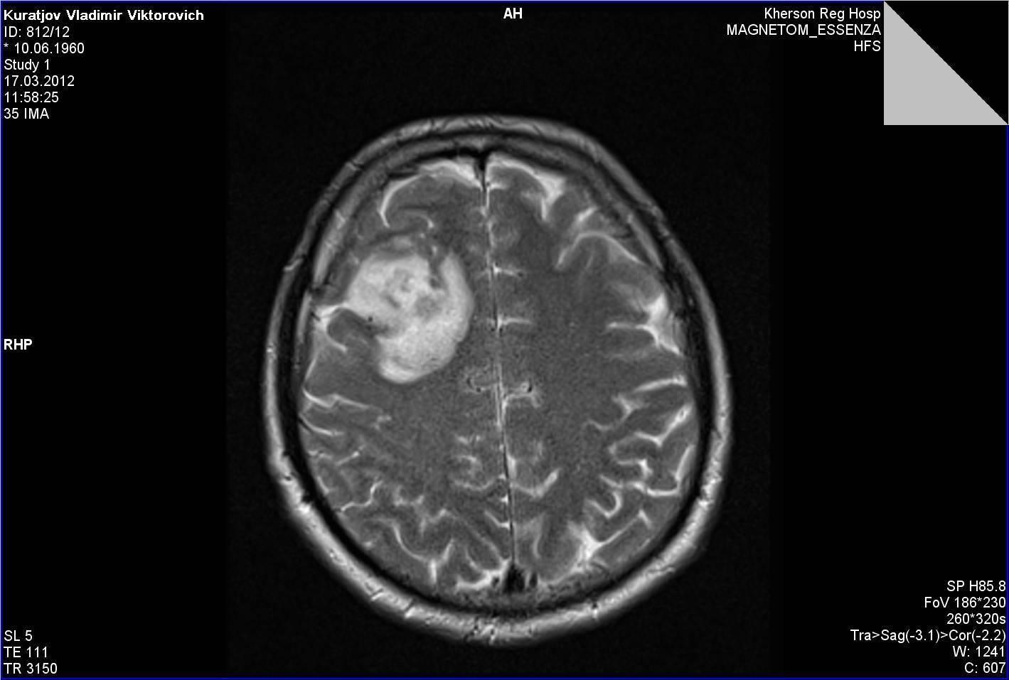 Кисты головного мозга у новорожденного виды, причины, лечение