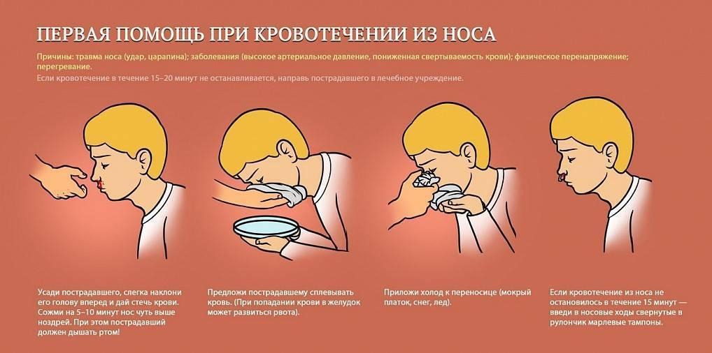 Почему идет кровь из носа у ребенка и как остановить кровотечение из носа