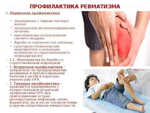 Ревматизм у детей: симптомы и лечение, профилактика осложнений заболевания | konstruktor-diety.ru