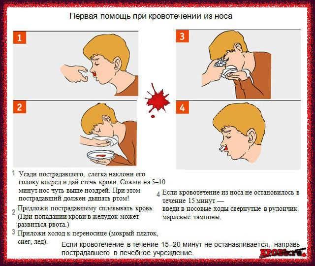 Опасны ли носовые кровотечения у детей и в чём их причина?