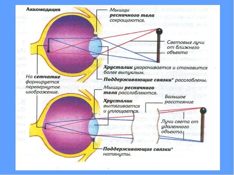 Спазм аккомодации глаза что это такое и как его лечить