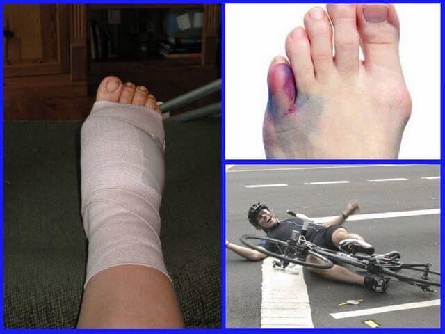 У ребенка перелом руки со смещением лечение срок срастания - травматолог.ру