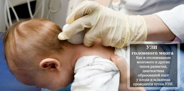Киста головного мозга у новорожденного: насколько опасны подобные формирования?