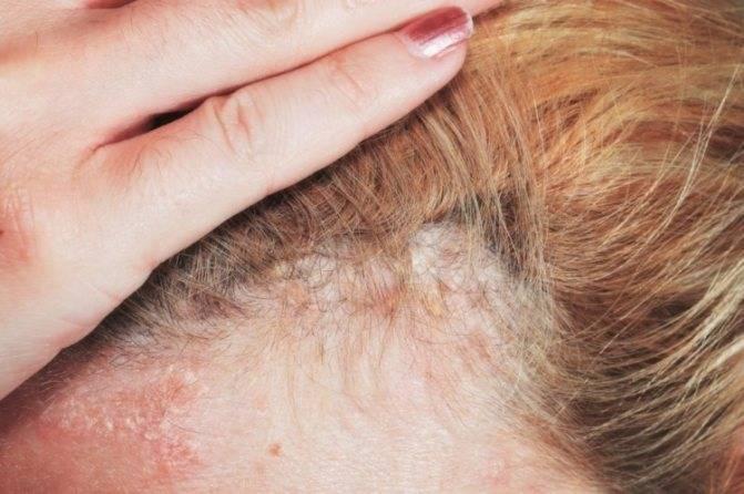 Себорея у детей на коже головы, лечение ребенка шампуни причины клинические проявления диагностика народные средства советы врачей-дерматологов