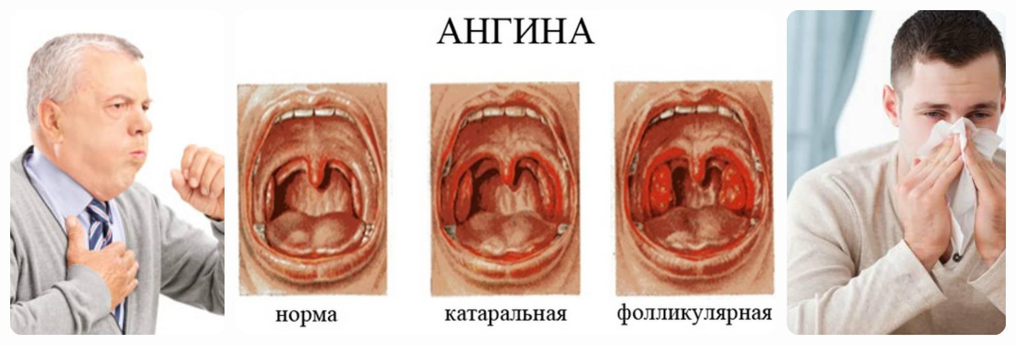Чем и как лечить ангину у ребёнка в 2-3 года - проверенные средства pulmono.ru чем и как лечить ангину у ребёнка в 2-3 года - проверенные средства
