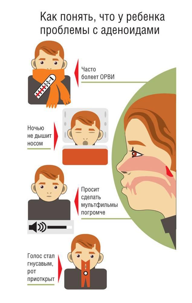 Аденоиды 3 степени: лечить или удалять?   малыш здоров!